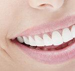 Zahnzusatzversicherung Analyse