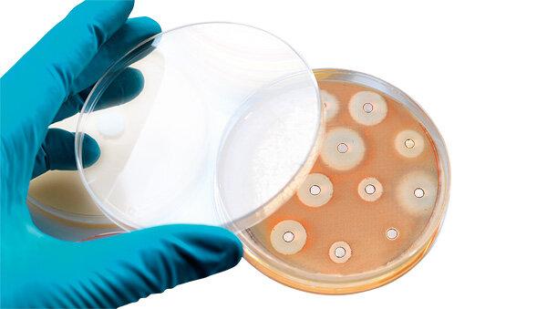 Schmerztabletten antibiotika nehmen kann trotz man Schmerztabletten und