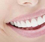 Zahnzusatzversicherung: Wir ermitteln die besten Angebote für Sie
